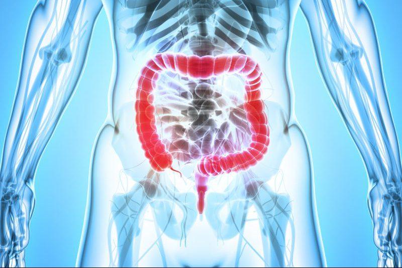 illustration of large intestine, Crohn's disease and ulcers